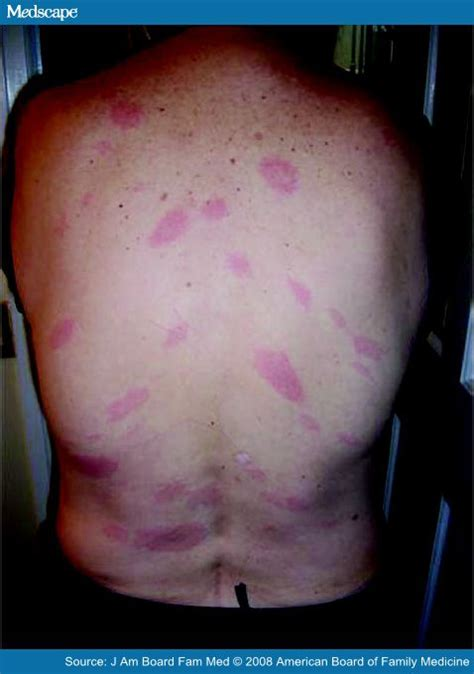 Back Lesions And Lyme Detox by Late Diagnosis Of Early Disseminated Lyme Disease