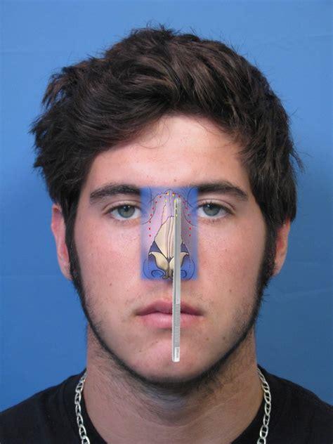 broken nose diagram 301 moved permanently