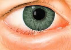 oculista pavia sintomi diagnosi e cure per l entropion oculista carlo