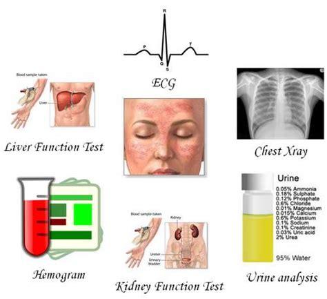 sle class evaluation understanding lupus evaluation and management medchrome