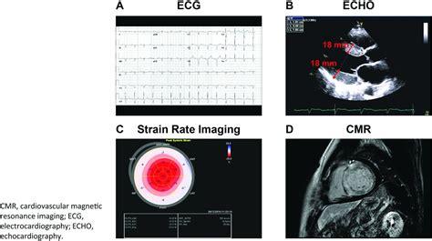 light chain cardiac amyloidosis strategies to promote