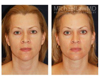 lower face and neck lift wire md though lower facelift cost will vary depending on
