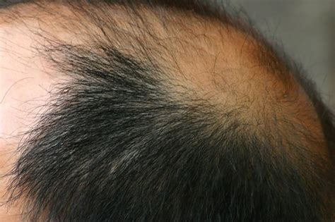 Types Of Hair Loss by The Different Types Of Hair Loss