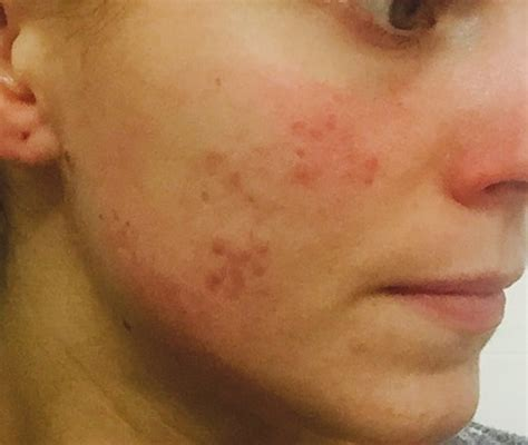 light spots on my face sudden one face rash spots for 10 months now