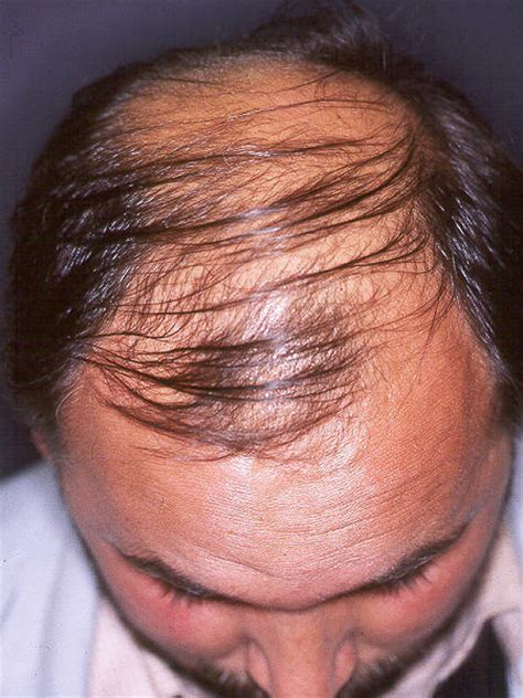 female pattern hair loss nice guidelines alopecia primary care dermatology society uk