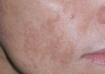 light brown spots on skin brown spots on skin causes pictures patches on chest