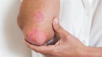 Itchy Skin Rash After C Section by Common Skin Rashes Skin And Center Everyday Health