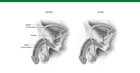 alimentazione per prostata ingrossata prostata ingrossata cause e rimedi naturali ipertrofia
