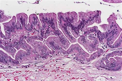 Papillary Cystadenoma Pathology Outlines by Pathology Outlines Intraductal Papillary Mucinous Neoplasm Ipmn