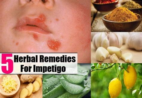 what is infantigo rash pictures home remedies and treatment