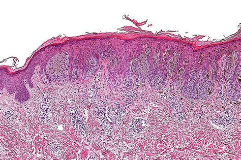 Pigmented Spindle Cell Nevus Of Reed Pathology Outlines by File Pigmented Spindle Cell Nevus 2 Intermed Mag Jpg Wikimedia Commons