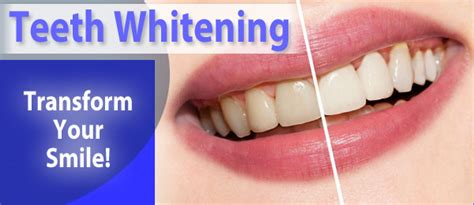 teeth whitening wollongong whiter  brighter smiles