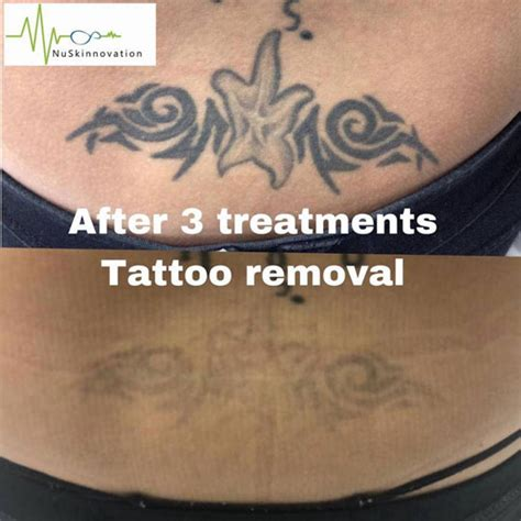 tattoo removal after 3 sessions after 3 treatments removal nuskinnovation pty ltd