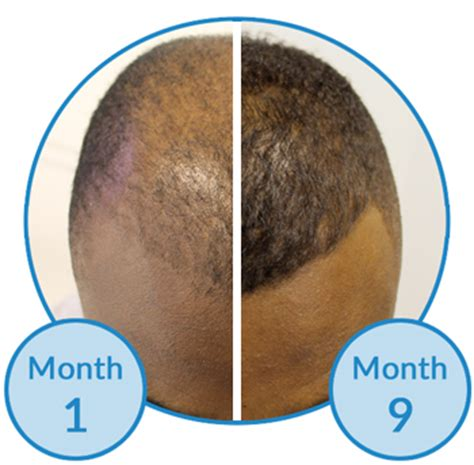 male pattern hair loss natural remedies male pattern hair loss natural remedies male pattern hair