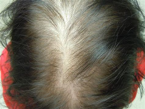 circular pattern hair loss female pattern baldness toppik malaysia
