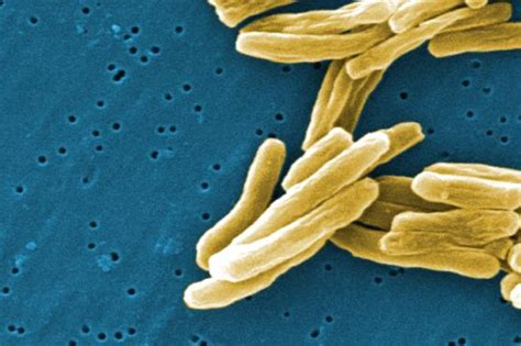 tuberculosis bacteria diagram what is tuberculosis