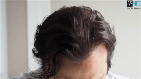 hair transplant pricelist in thailand hair transplant price