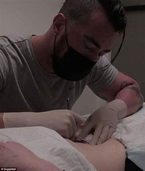 Modification Belly Button Removal by Terrigal Charged With Mutilation Hit With