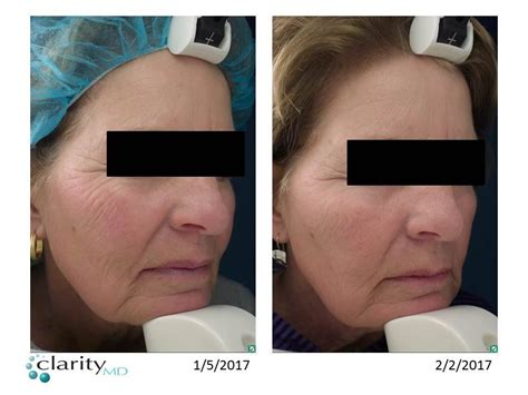 beauty through collagen p i n treatments clarity md