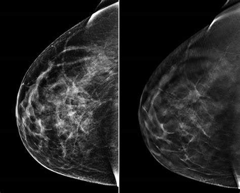 mammogram images breast cancer breakthrough 3d mammograms offer sharper