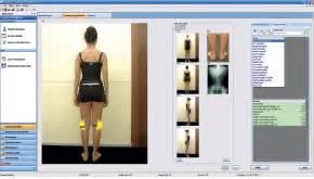 pedane baropodometriche sensor medica web site pedane baropodometriche