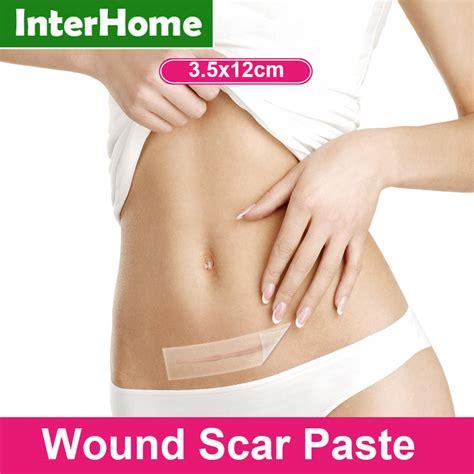 hypertrophic c section scar popular keloid treatment buy cheap keloid treatment lots