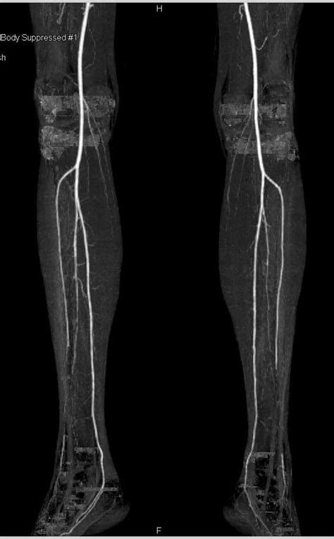 Multisites Vascular Disease in Both Lower Extremities