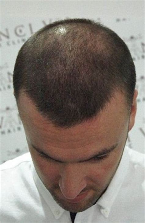 hair tattoo for bald men bald are getting tattoos to hide their baldness