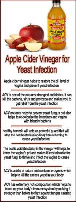 apple cider vinegar for yeast infection apple cider