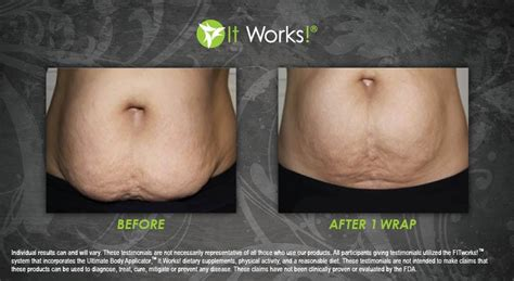 it works wraps before and after the ultimate