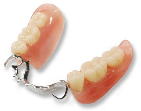 protesi mobili prezzi protesi dentale protesi fissa protesi mobile dentale