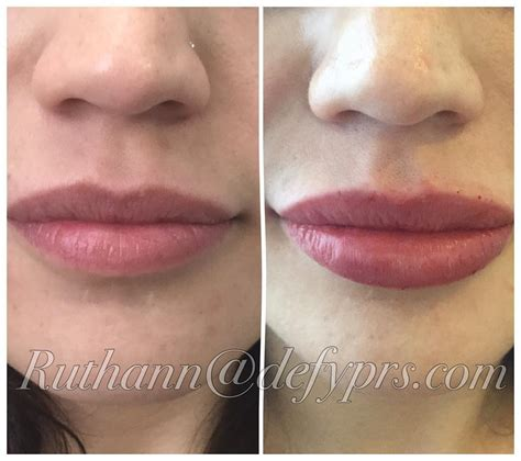 juvederm hair styles how many cc s of juvederm for lips hairsstyles co