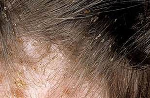 what color are nits awesome what do lice eggs look like on hair the