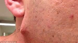 Image result for ingrown hair spot