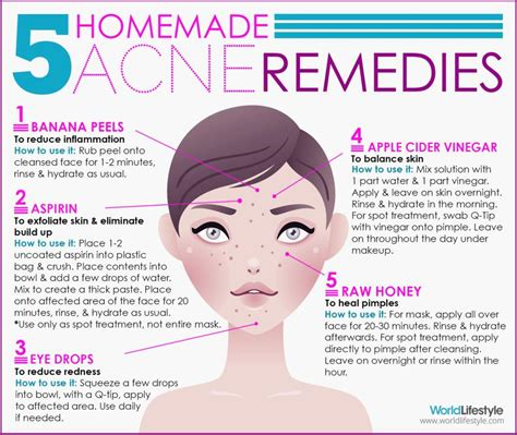 12 Best Tips On Treating Acne by Say Goodbye To Acne The Way Cavsconnect