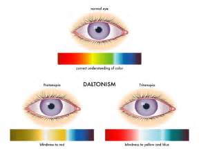 what is color blind information about color blindness with major causes and