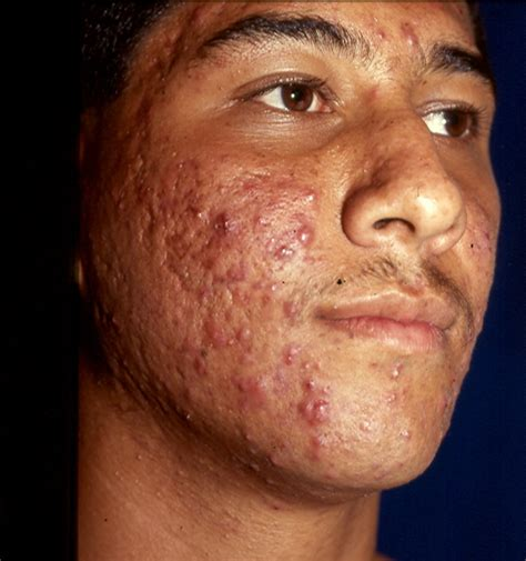 imagenes asquerosas en la piel enfermedades