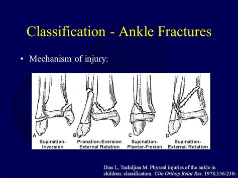Children Of The Mechanism pediatric ankle foot fractures ppt