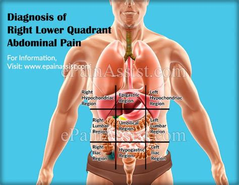 25 Best Ideas About Abdominal Pain On Pinterest Stomach