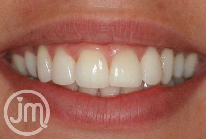 teeth whitening plymouth welcome to dental plymouth