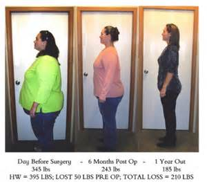 pros and cons of weight loss surgery firsthealth