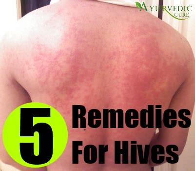 home remedies for hives treatments and cure for
