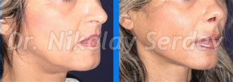 lower face and neck lift lower face and neck lift scarless serdev suture 174 smas