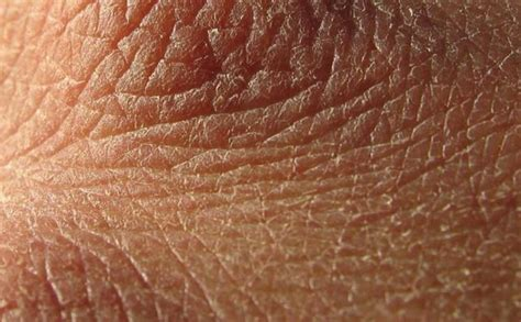 Why Do We Shed Skin by Why Is Skin So 9 Causes Relief For Skin