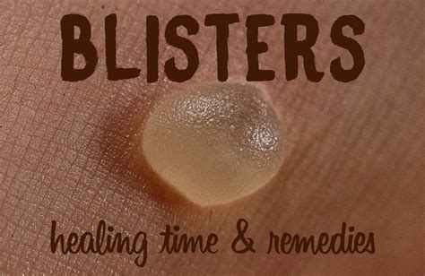 how to a to heal blister healing time how does it take for a blister to heal