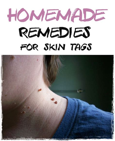 12 remedies for skin tag removal home remedies