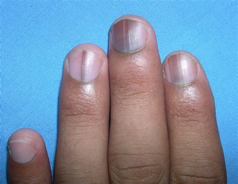 dark nail beds nail problems vitamin deficiency awesome nail