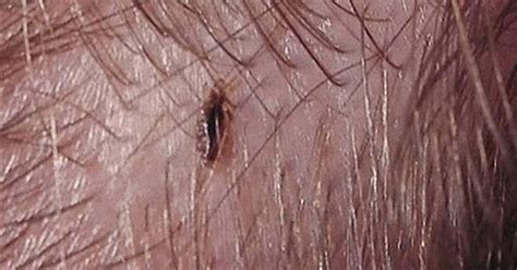 how to kill lice on bedding how to get rid of head lice daily health and beauty tips