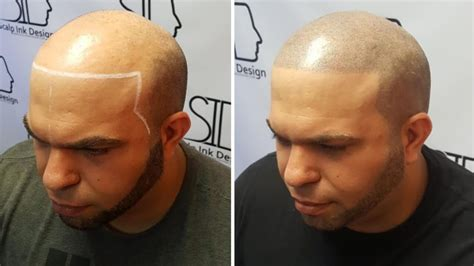 scalp micropigmentation for african american women in florida scalp micropigmentation in south florida scalp ink design