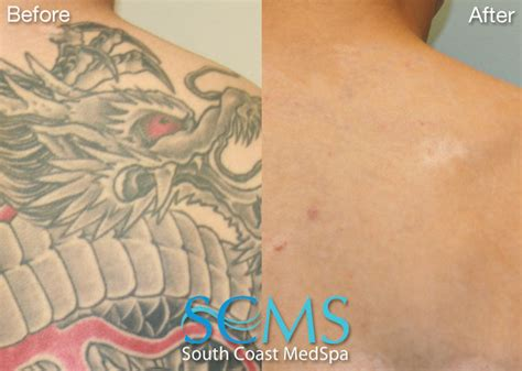 free tattoo removal programs free 28 free removal los angeles unique y dividual